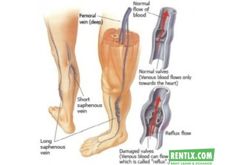 VEIN CLINIC - Legs for Life